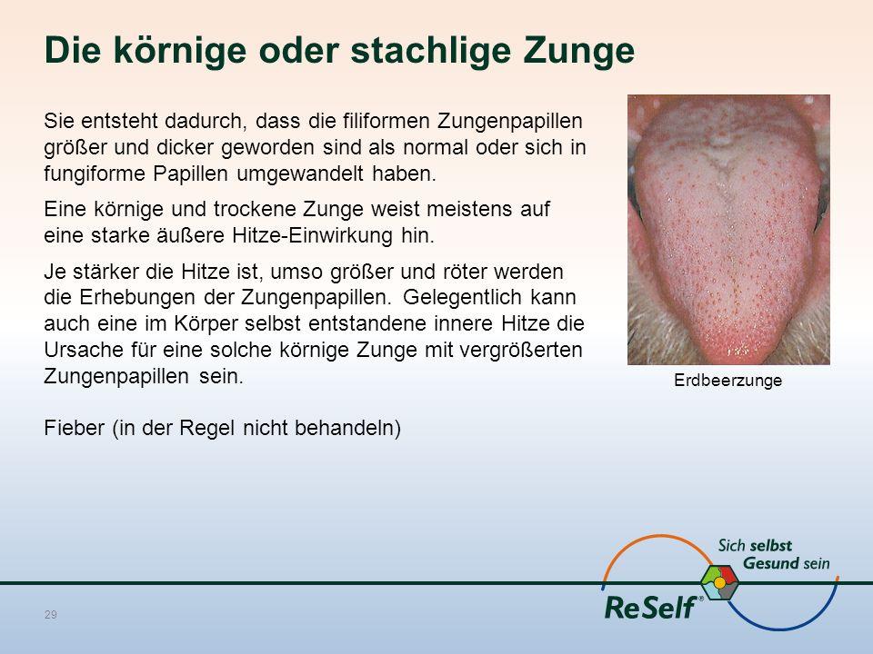 Die körnige oder stachlige Zunge Sie entsteht dadurch, dass die filiformen Zungenpapillen größer und dicker geworden sind als normal oder sich in fungiforme Papillen umgewandelt haben.