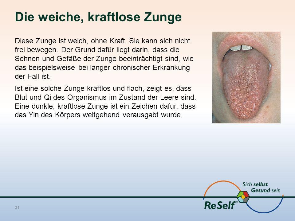 Die weiche, kraftlose Zunge Diese Zunge ist weich, ohne Kraft. Sie kann sich nicht frei bewegen. Der Grund dafür liegt darin, dass die Sehnen und Gefä