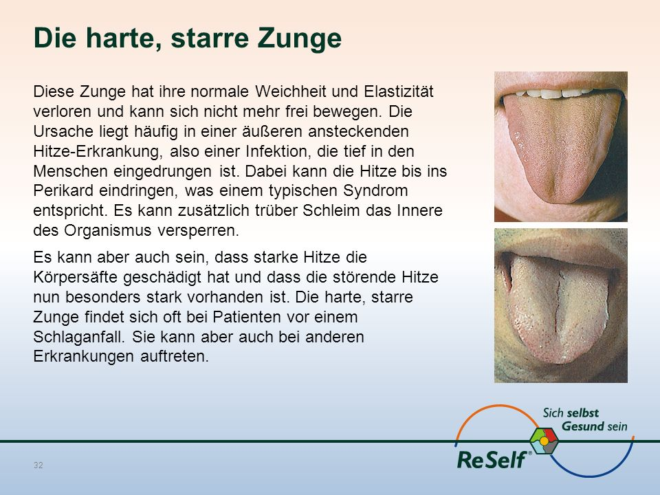 Die harte, starre Zunge Diese Zunge hat ihre normale Weichheit und Elastizität verloren und kann sich nicht mehr frei bewegen. Die Ursache liegt häufi