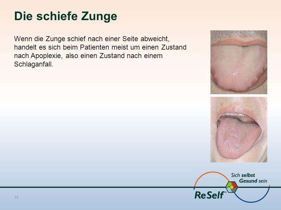 Die schiefe Zunge Wenn die Zunge schief nach einer Seite abweicht, handelt es sich beim Patienten meist um einen Zustand nach Apoplexie, also einen Zustand nach einem Schlaganfall.