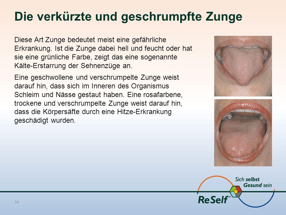 Die verkürzte und geschrumpfte Zunge Diese Art Zunge bedeutet meist eine gefährliche Erkrankung. Ist die Zunge dabei hell und feucht oder hat sie eine