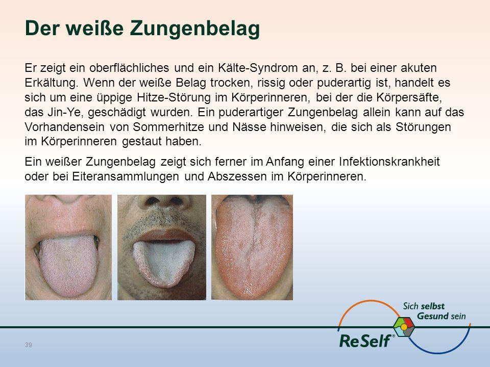 Der weiße Zungenbelag Er zeigt ein oberflächliches und ein Kälte-Syndrom an, z. B. bei einer akuten Erkältung. Wenn der weiße Belag trocken, rissig od