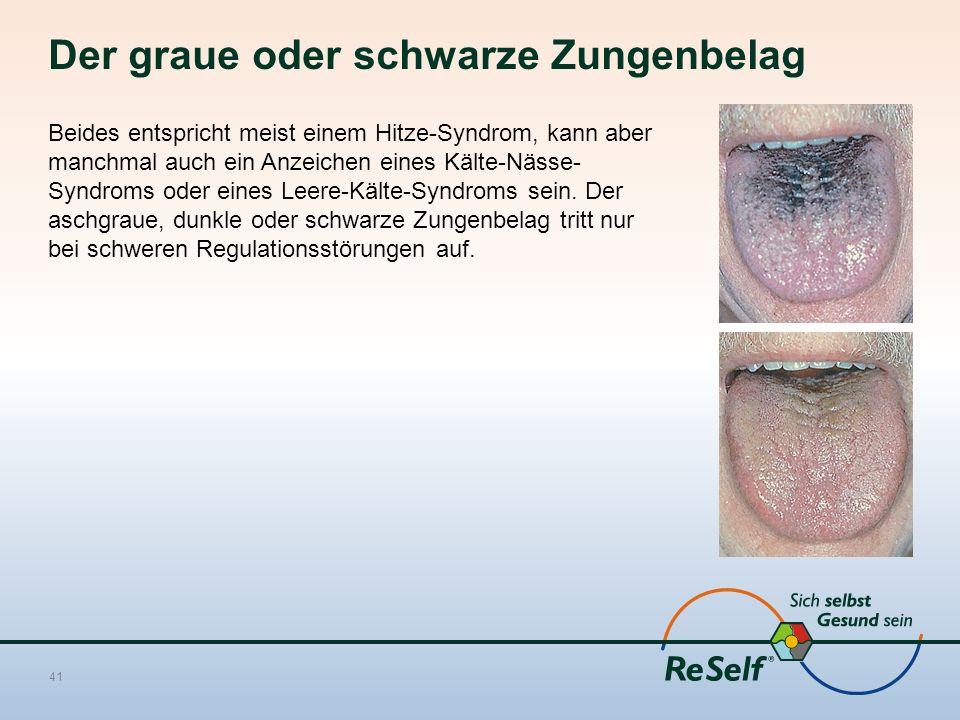 Der graue oder schwarze Zungenbelag Beides entspricht meist einem Hitze-Syndrom, kann aber manchmal auch ein Anzeichen eines Kälte-Nässe- Syndroms oder eines Leere-Kälte-Syndroms sein.