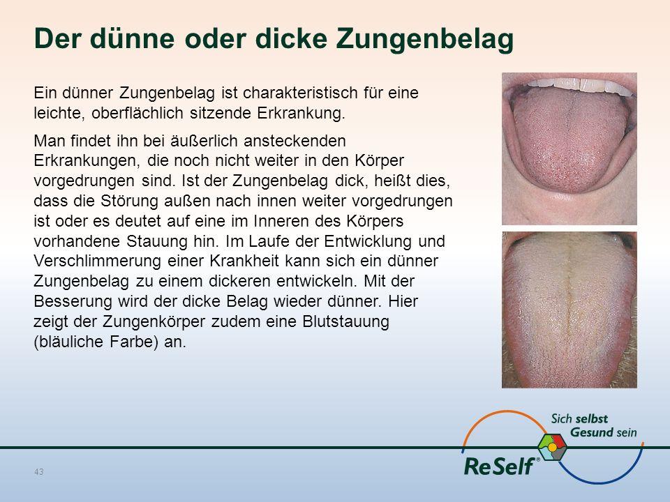 Der dünne oder dicke Zungenbelag Ein dünner Zungenbelag ist charakteristisch für eine leichte, oberflächlich sitzende Erkrankung.