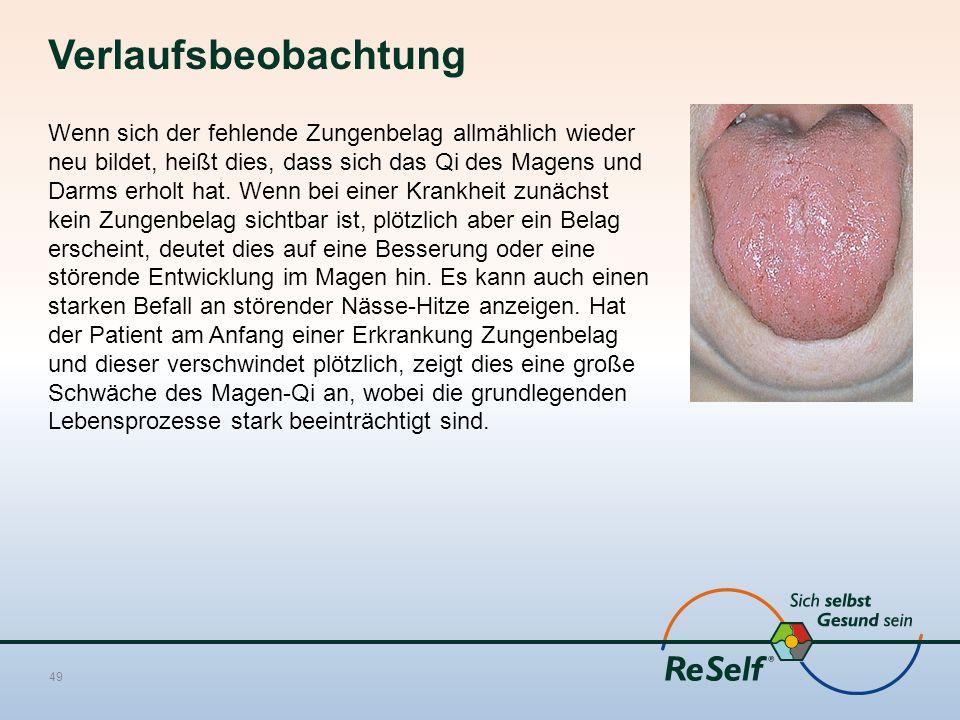 Verlaufsbeobachtung Wenn sich der fehlende Zungenbelag allmählich wieder neu bildet, heißt dies, dass sich das Qi des Magens und Darms erholt hat. Wen