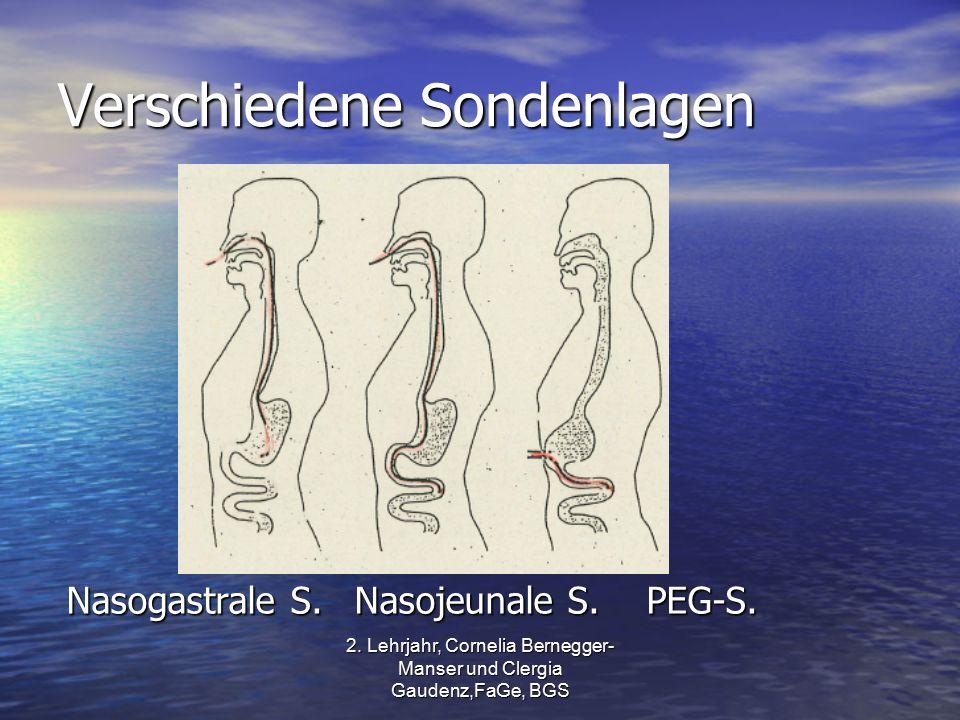 2. Lehrjahr, Cornelia Bernegger- Manser und Clergia Gaudenz,FaGe, BGS Verschiedene Sondenlagen Nasogastrale S.Nasojeunale S. PEG-S.