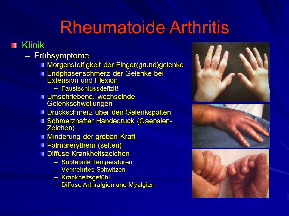 Rheumatoide Arthritis Therapieziele –Unterdrückung der Krankheitsaktivität –Vermeidung von Entwicklungsstörungen –Vermeidung von Gelenkzerstörungen