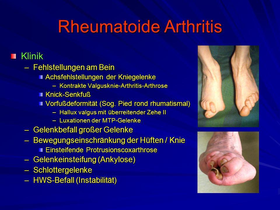 Rheumatoide Arthritis Diagnostik –Labor BKS, y-Globulin, CRP, Eisenspiegel erniedrigt Rheumafaktor (80%) Antinukleäre Antikörper (ANA 40 – 50%) –Synoviaanalyse Milchig trübe Synovialflüssigkeit –Ca.