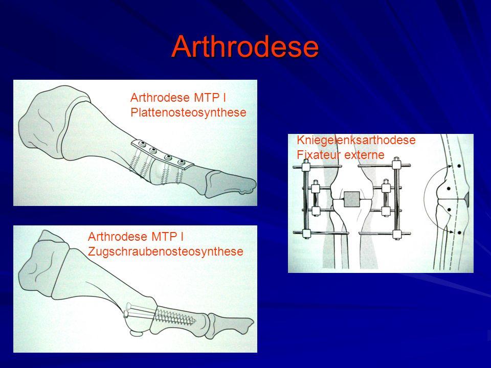 Arthrodese Arthrodese MTP I Plattenosteosynthese Arthrodese MTP I Zugschraubenosteosynthese Kniegelenksarthodese Fixateur externe