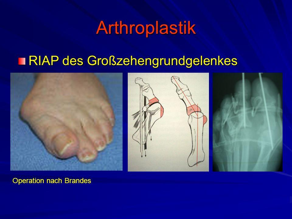 Arthroplastik RIAP des Großzehengrundgelenkes Operation nach Brandes