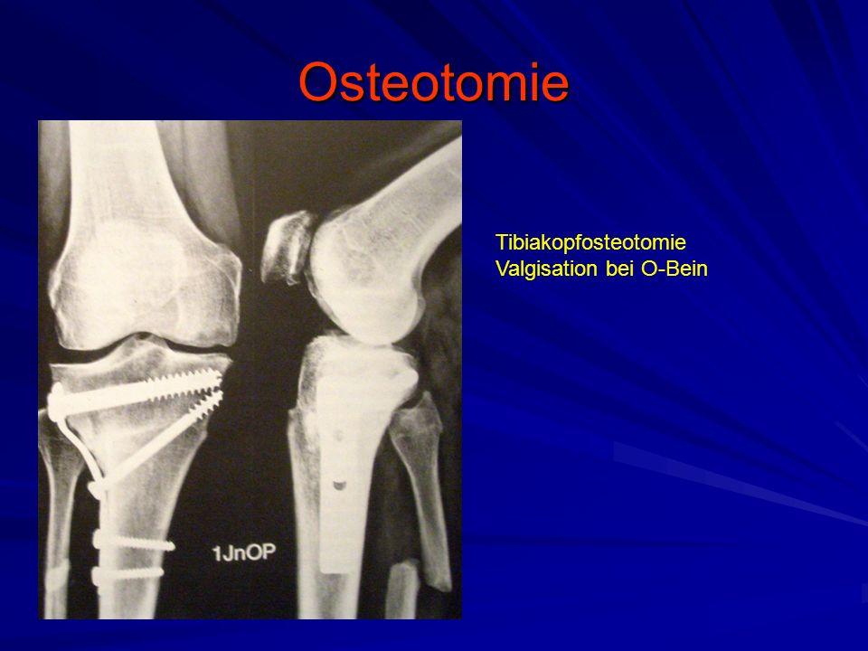 Osteotomie Tibiakopfosteotomie Valgisation bei O-Bein