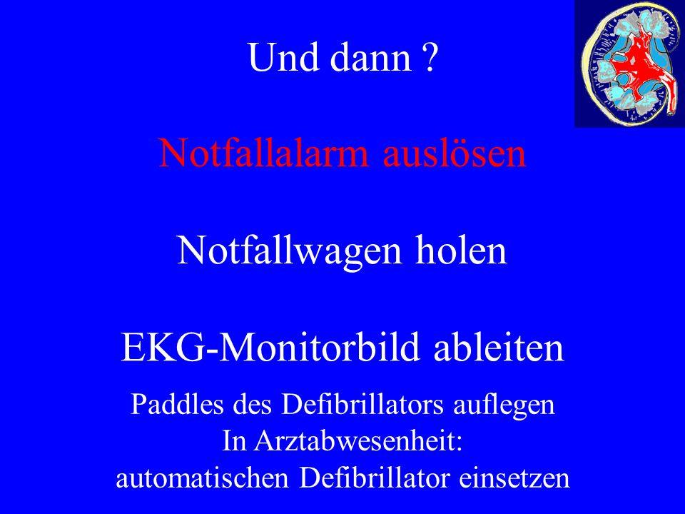 Und dann ? ß Notfallalarm auslösen Notfallwagen holen EKG-Monitorbild ableiten Paddles des Defibrillators auflegen In Arztabwesenheit: automatischen D