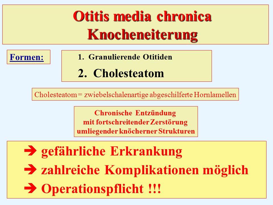 Otitis media chronica Knocheneiterung Formen: 1.Granulierende Otitiden 2.