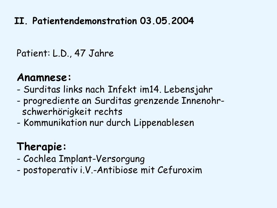 II. Patientendemonstration 03.05.2004 Patient: L.D., 47 Jahre Anamnese: - Surditas links nach Infekt im14. Lebensjahr - progrediente an Surditas grenz