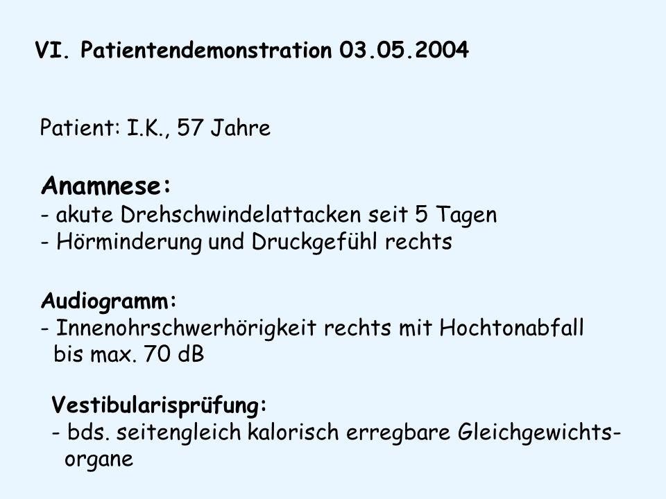 VI. Patientendemonstration 03.05.2004 Patient: I.K., 57 Jahre Anamnese: - akute Drehschwindelattacken seit 5 Tagen - Hörminderung und Druckgefühl rech
