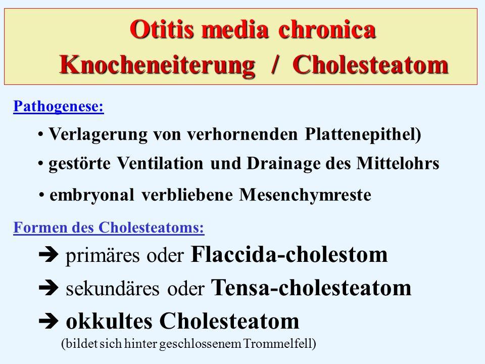 Pathogenese:  primäres oder Flaccida-cholestom  sekundäres oder Tensa-cholesteatom  okkultes Cholesteatom (bildet sich hinter geschlossenem Trommelfell) Formen des Cholesteatoms: gestörte Ventilation und Drainage des Mittelohrs Verlagerung von verhornenden Plattenepithel) embryonal verbliebene Mesenchymreste Otitis media chronica Knocheneiterung / Cholesteatom