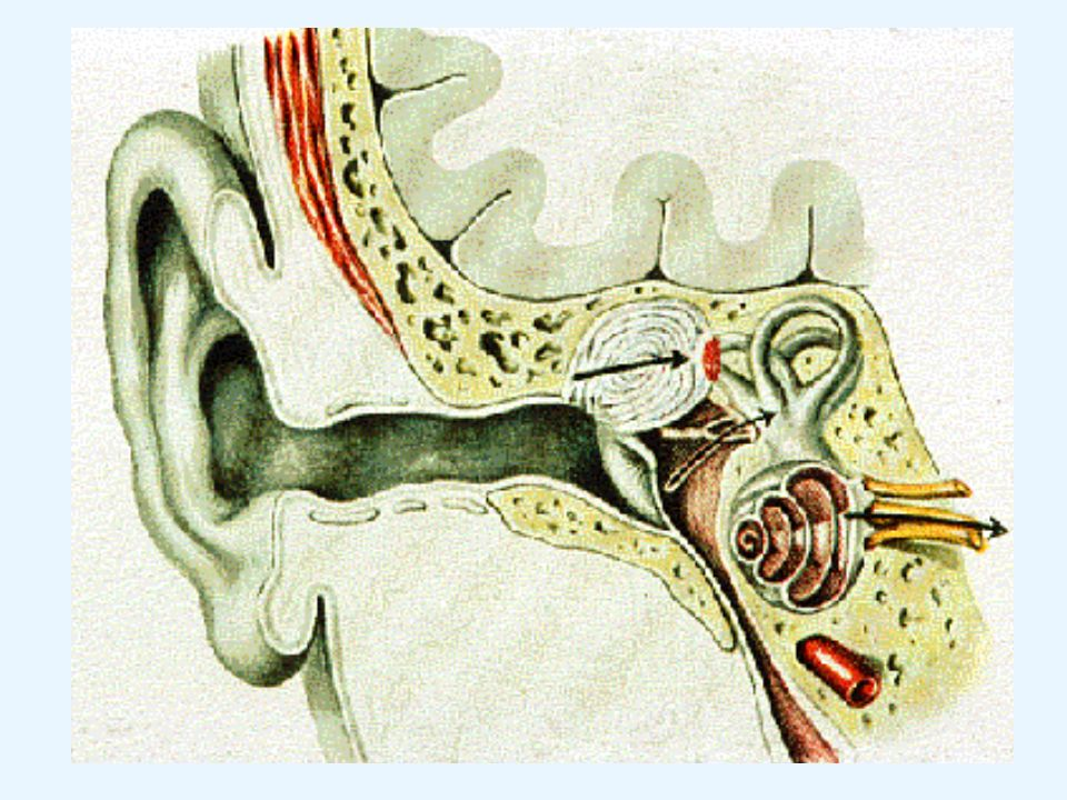 "Differentialdiagnose: - Cerumen obturans - Ruptur des runden Fensters - Akustikusneurinom ""Hörsturz Diagnostik: - Anamnese - Otoskopie - Stimmgabelversuche - Audiogramm - später MRT, BERA"