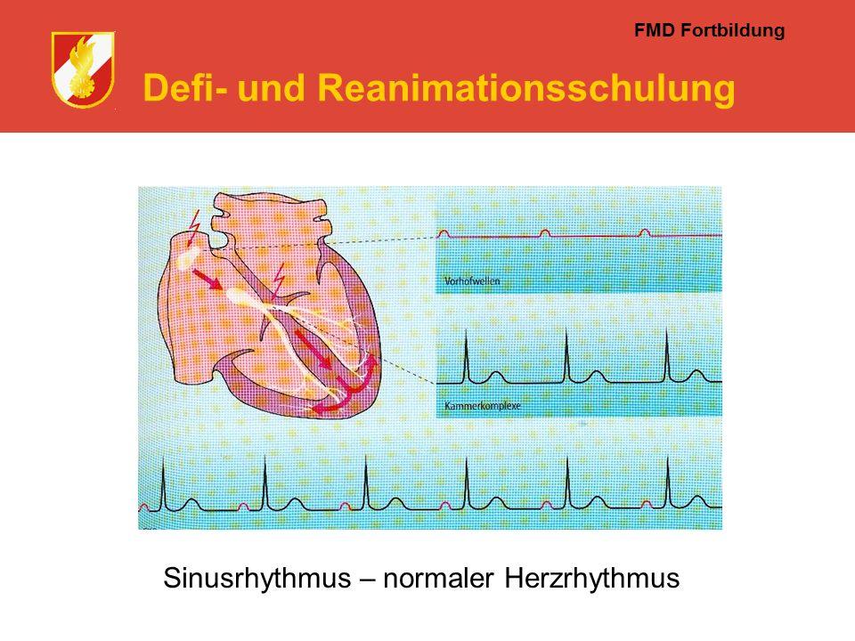 FMD Fortbildung Defi- und Reanimationsschulung Sinusrhythmus – normaler Herzrhythmus