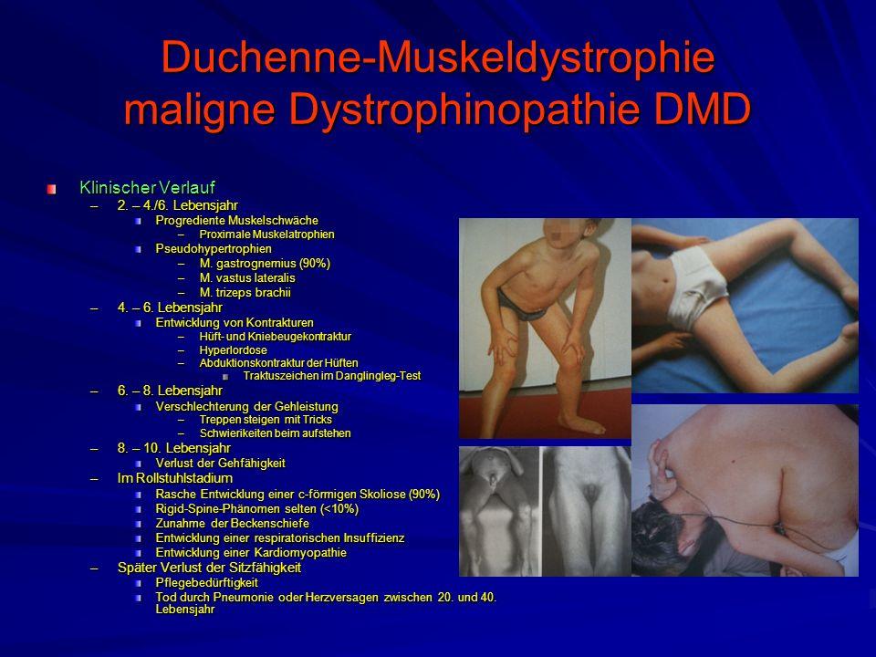 Duchenne-Muskeldystrophie maligne Dystrophinopathie DMD Klinischer Verlauf –2.