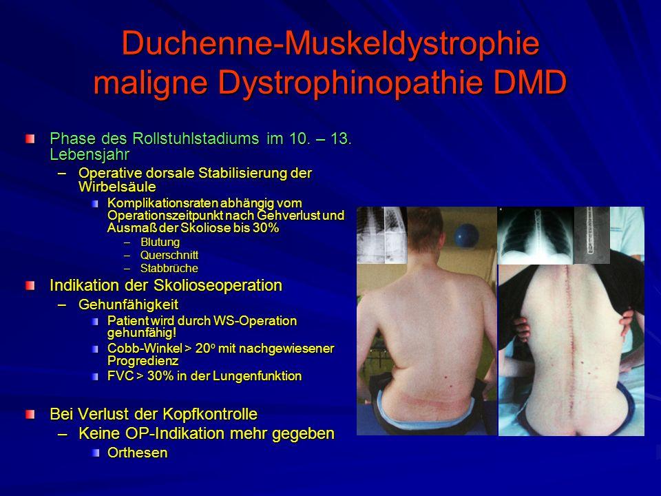 Duchenne-Muskeldystrophie maligne Dystrophinopathie DMD Phase des Rollstuhlstadiums im 10.
