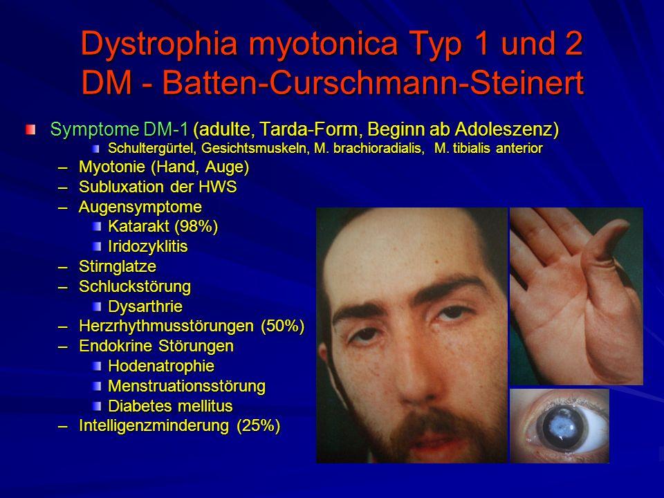 Dystrophia myotonica Typ 1 und 2 DM - Batten-Curschmann-Steinert Symptome DM-1 (adulte, Tarda-Form, Beginn ab Adoleszenz) Schultergürtel, Gesichtsmuskeln, M.