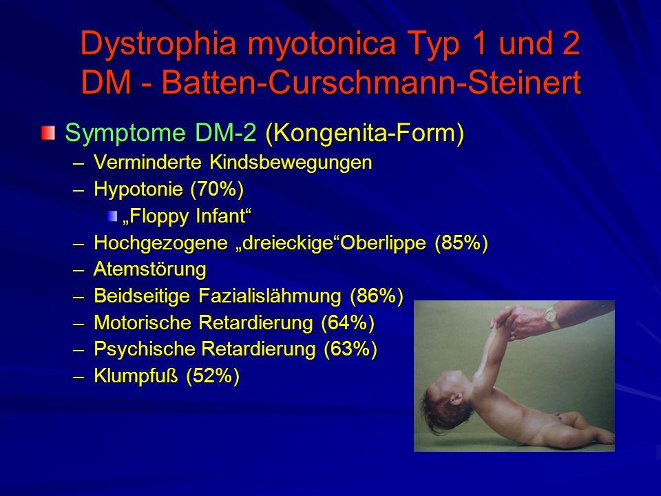 """Dystrophia myotonica Typ 1 und 2 DM - Batten-Curschmann-Steinert Symptome DM-2 (Kongenita-Form) –Verminderte Kindsbewegungen –Hypotonie (70%) """"Floppy Infant –Hochgezogene """"dreieckige Oberlippe (85%) –Atemstörung –Beidseitige Fazialislähmung (86%) –Motorische Retardierung (64%) –Psychische Retardierung (63%) –Klumpfuß (52%)"""