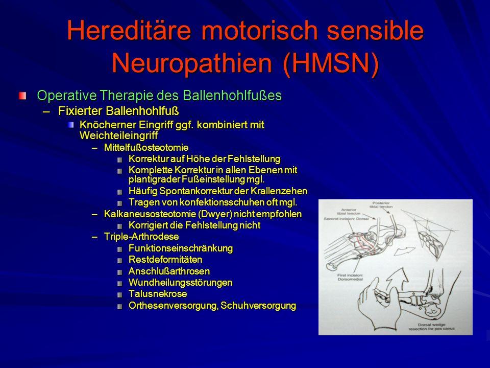 Hereditäre motorisch sensible Neuropathien (HMSN) Operative Therapie des Ballenhohlfußes –Fixierter Ballenhohlfuß Knöcherner Eingriff ggf.