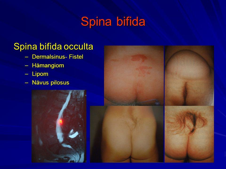 Spina bifida Spina bifida occulta –Dermalsinus- Fistel –Hämangiom –Lipom –Nävus pilosus