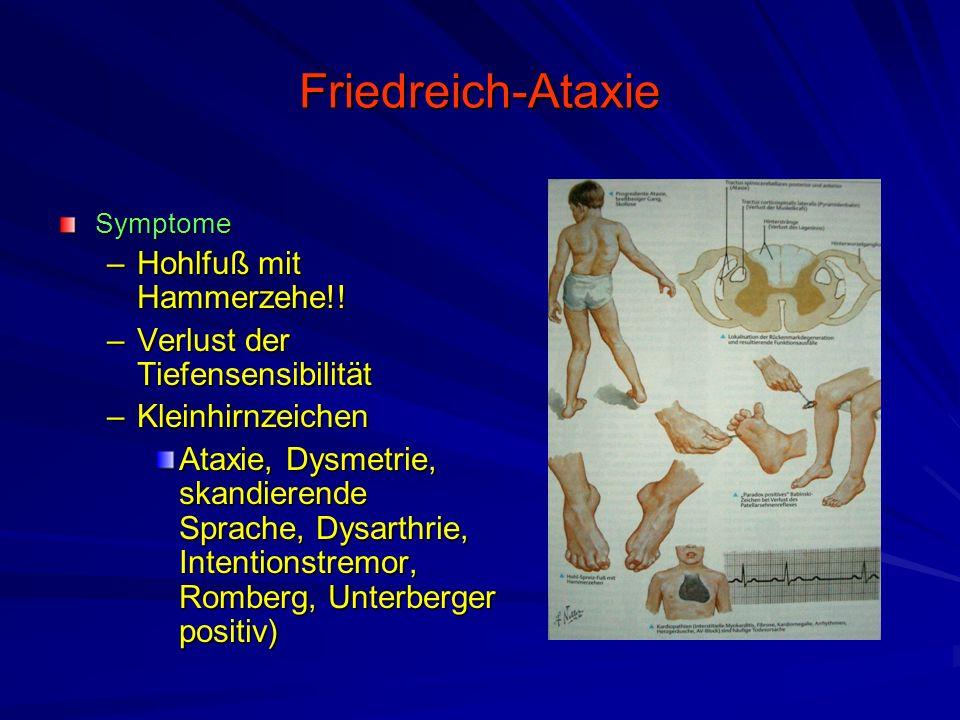 Friedreich-Ataxie Symptome –Hohlfuß mit Hammerzehe!.