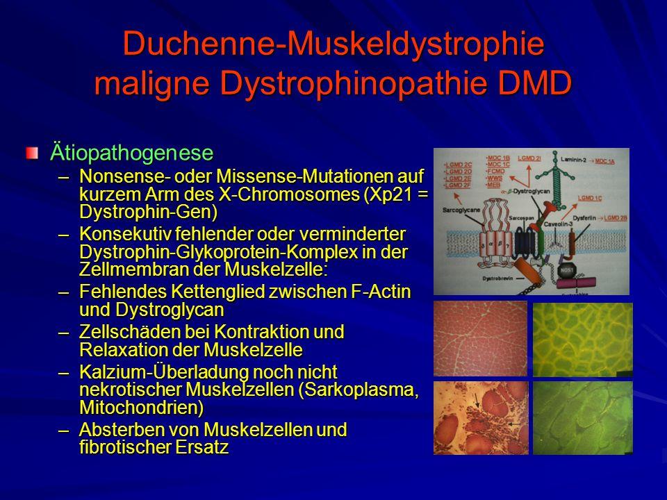 Duchenne-Muskeldystrophie maligne Dystrophinopathie DMD Ätiopathogenese –Nonsense- oder Missense-Mutationen auf kurzem Arm des X-Chromosomes (Xp21 = Dystrophin-Gen) –Konsekutiv fehlender oder verminderter Dystrophin-Glykoprotein-Komplex in der Zellmembran der Muskelzelle: –Fehlendes Kettenglied zwischen F-Actin und Dystroglycan –Zellschäden bei Kontraktion und Relaxation der Muskelzelle –Kalzium-Überladung noch nicht nekrotischer Muskelzellen (Sarkoplasma, Mitochondrien) –Absterben von Muskelzellen und fibrotischer Ersatz