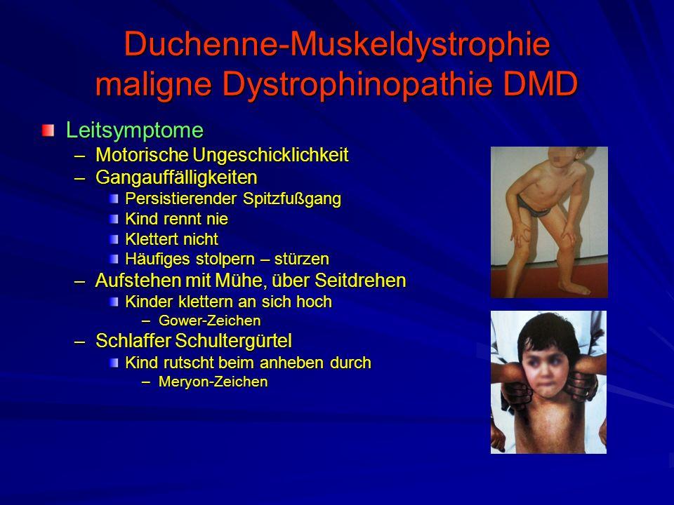 Duchenne-Muskeldystrophie maligne Dystrophinopathie DMD Leitsymptome –Motorische Ungeschicklichkeit –Gangauffälligkeiten Persistierender Spitzfußgang Kind rennt nie Klettert nicht Häufiges stolpern – stürzen –Aufstehen mit Mühe, über Seitdrehen Kinder klettern an sich hoch –Gower-Zeichen –Schlaffer Schultergürtel Kind rutscht beim anheben durch –Meryon-Zeichen