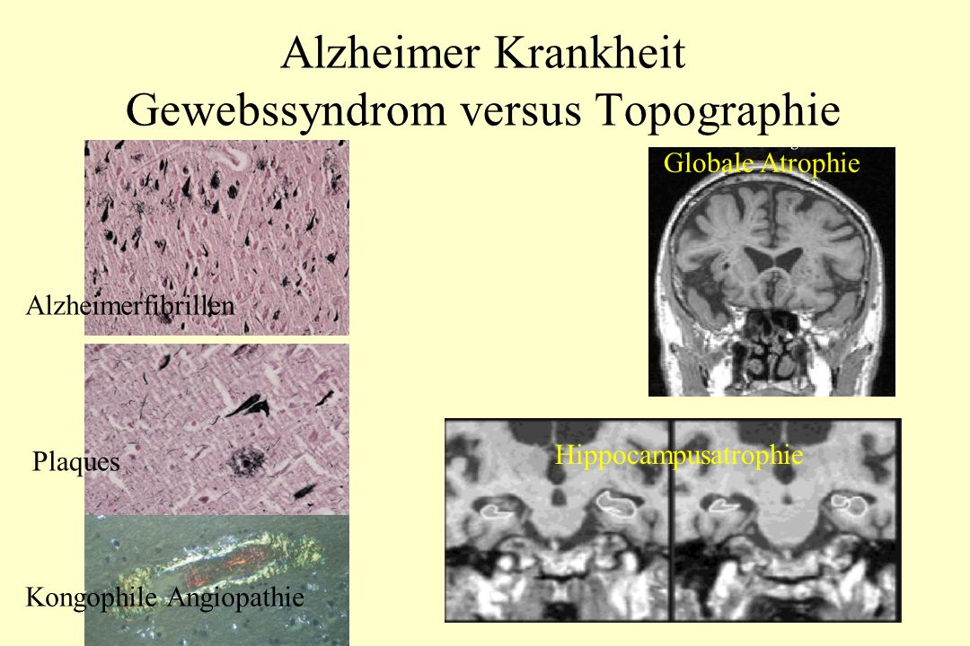 Alzheimer Krankheit Gewebssyndrom versus Topographie Alzheimerfibrillen Kongophile Angiopathie Plaques Hippocampusatrophie Globale Atrophie