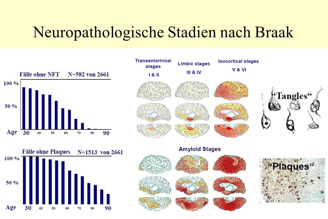 Neuropathologische Stadien nach Braak