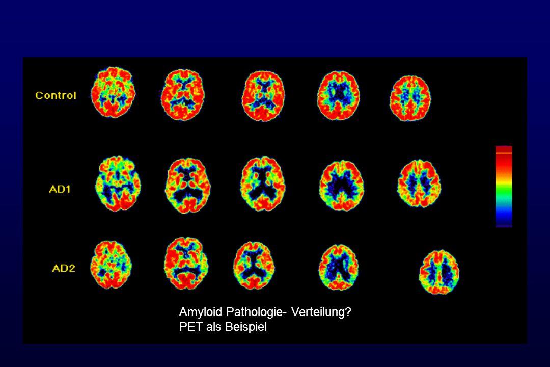 Amyloid Pathologie- Verteilung PET als Beispiel
