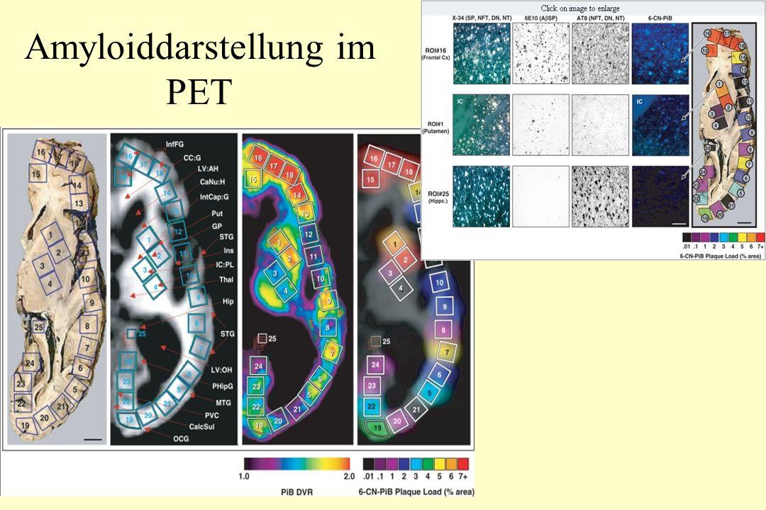 Amyloiddarstellung im PET