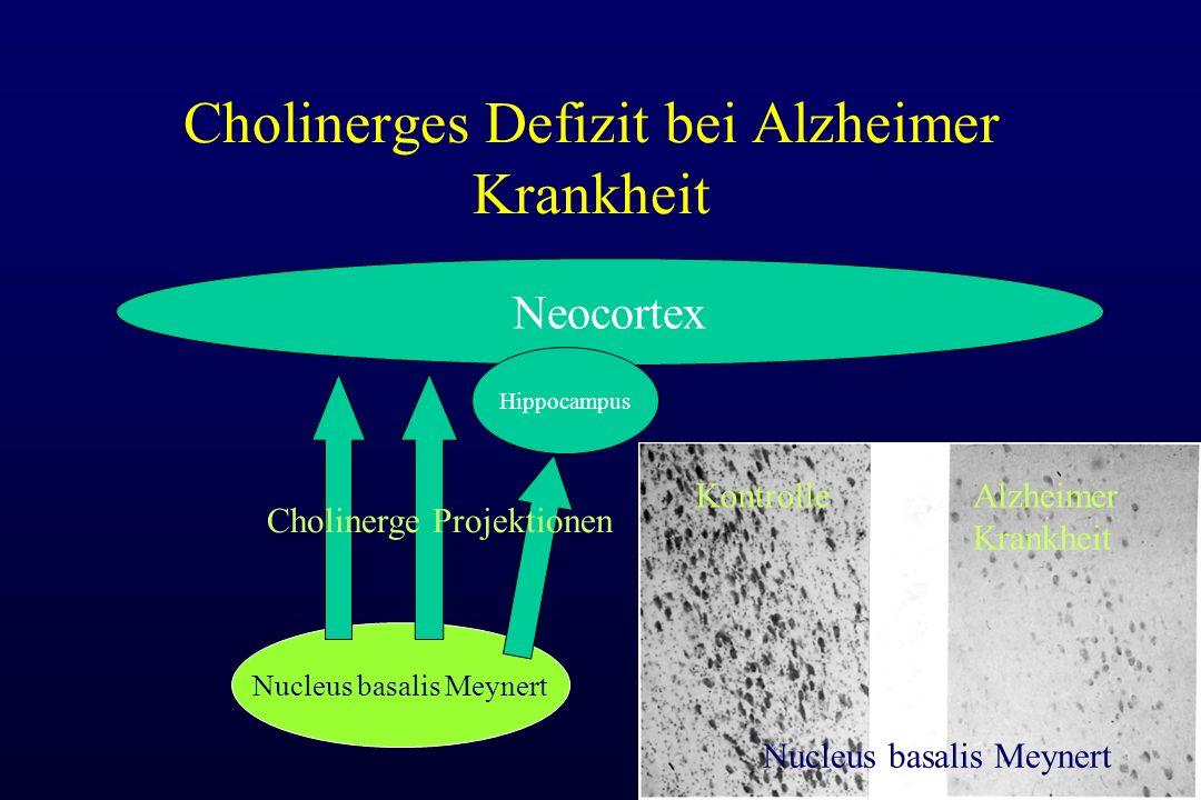 Cholinerges Defizit bei Alzheimer Krankheit Nucleus basalis Meynert Neocortex Hippocampus Nucleus basalis Meynert KontrolleAlzheimer Krankheit Cholinerge Projektionen