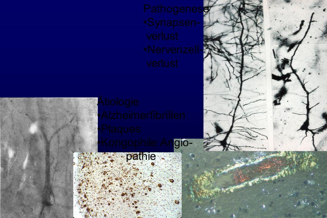 Pathogenese Synapsen- verlust Nervenzell- verlust Ätiologie Alzheimerfibrillen Plaques Kongophile Angio- pathie