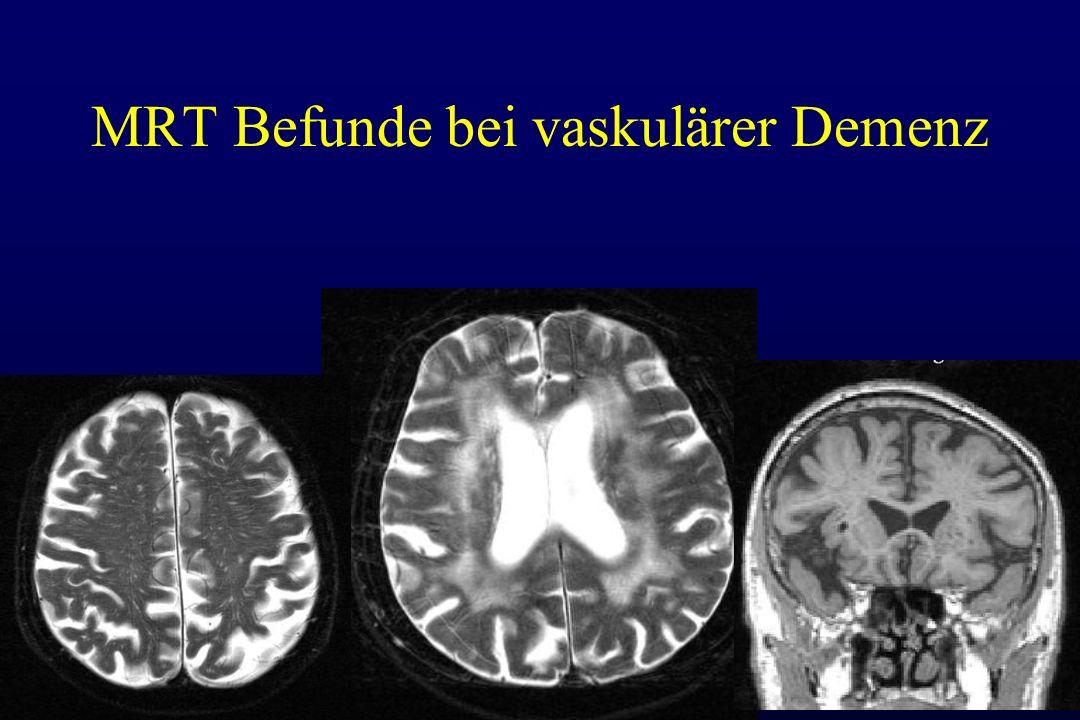 MRT Befunde bei vaskulärer Demenz