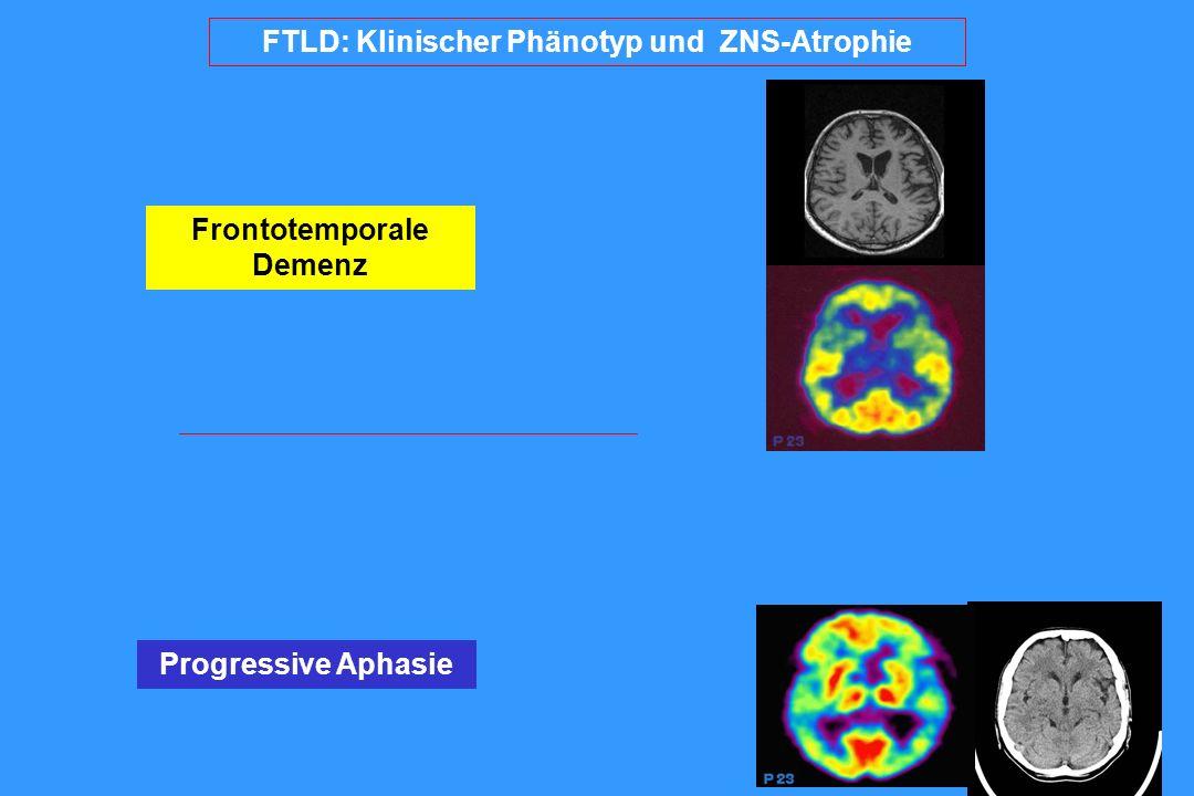 FTLD: Klinischer Phänotyp und ZNS-Atrophie Frontotemporale Demenz Progressive Aphasie