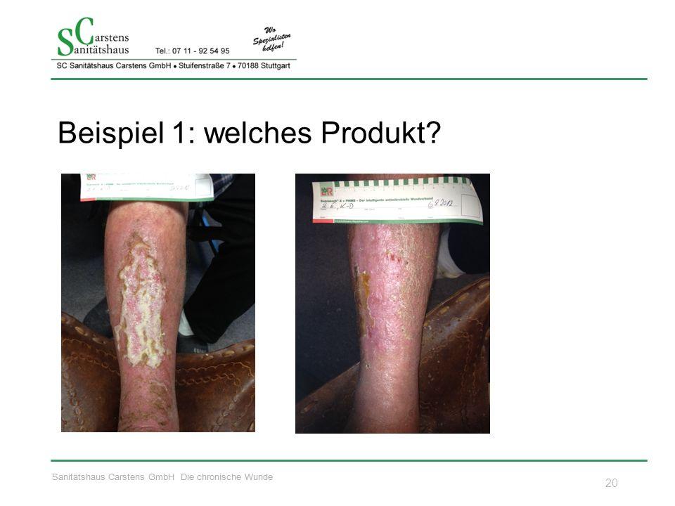 Sanitätshaus Carstens GmbH Die chronische Wunde Beispiel 1: welches Produkt? 20