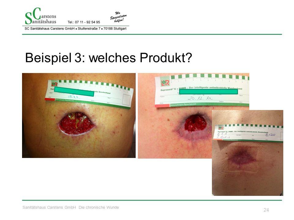 Sanitätshaus Carstens GmbH Die chronische Wunde Beispiel 3: welches Produkt? 24