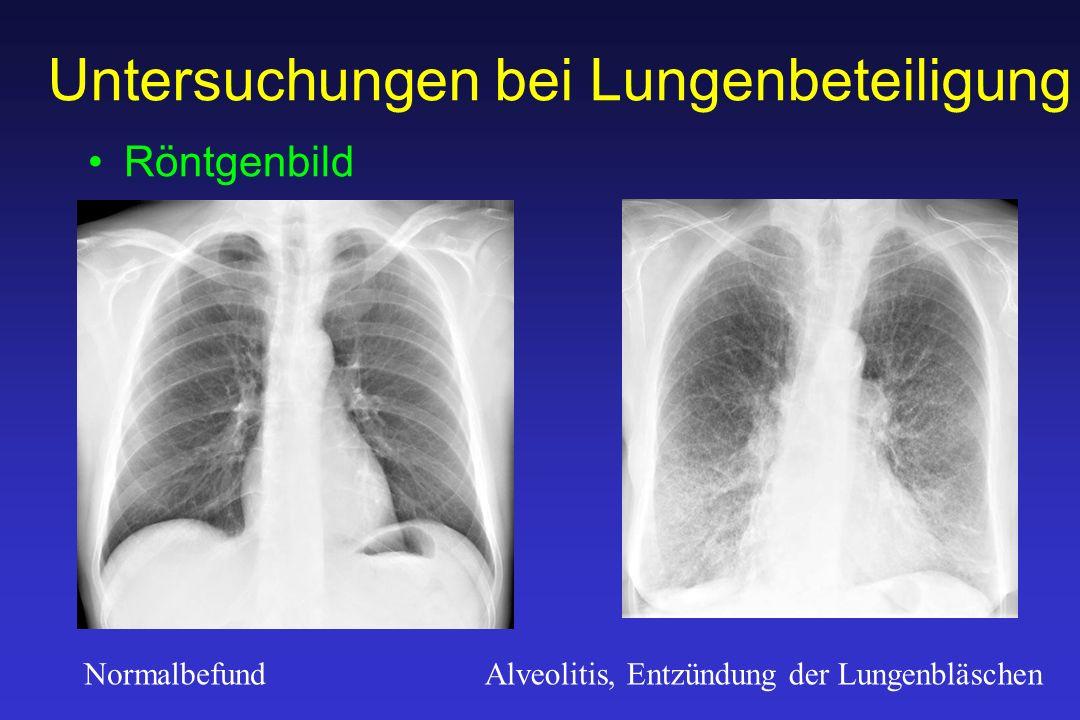 Untersuchungen bei Lungenbeteiligung Röntgenbild NormalbefundAlveolitis, Entzündung der Lungenbläschen
