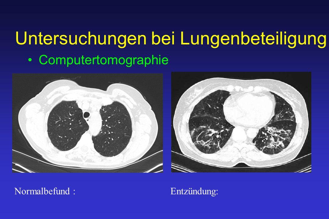 Untersuchungen bei Lungenbeteiligung Computertomographie Normalbefund: Entzündung: