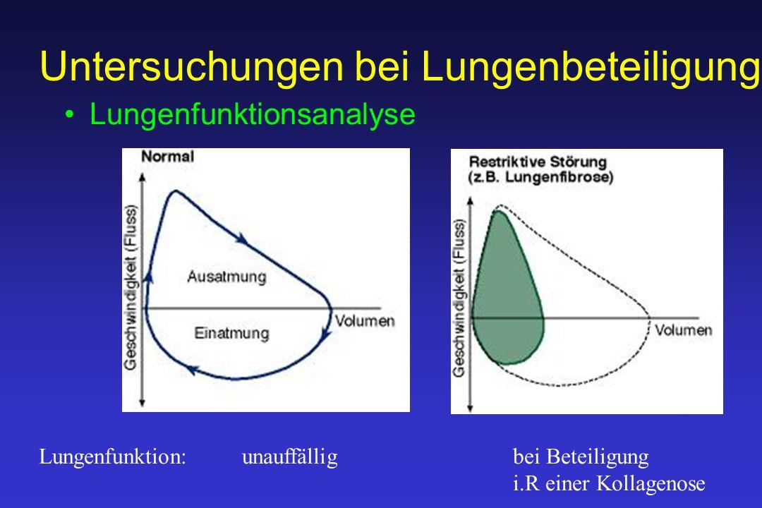 Untersuchungen bei Lungenbeteiligung Lungenfunktionsanalyse Lungenfunktion: unauffälligbei Beteiligung i.R einer Kollagenose