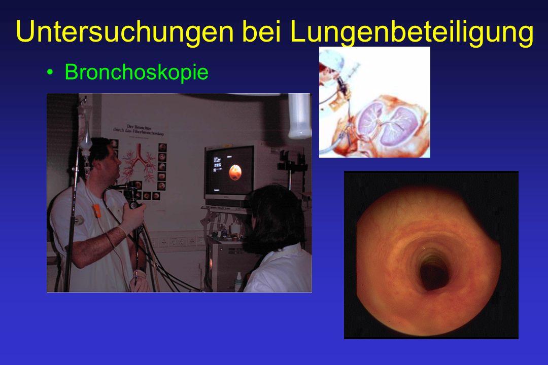 Untersuchungen bei Lungenbeteiligung Bronchoskopie
