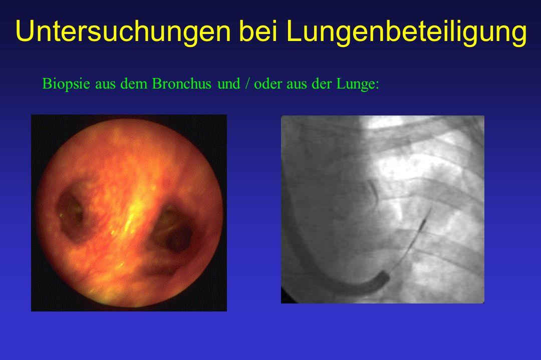 Untersuchungen bei Lungenbeteiligung Biopsie aus dem Bronchus und / oder aus der Lunge: