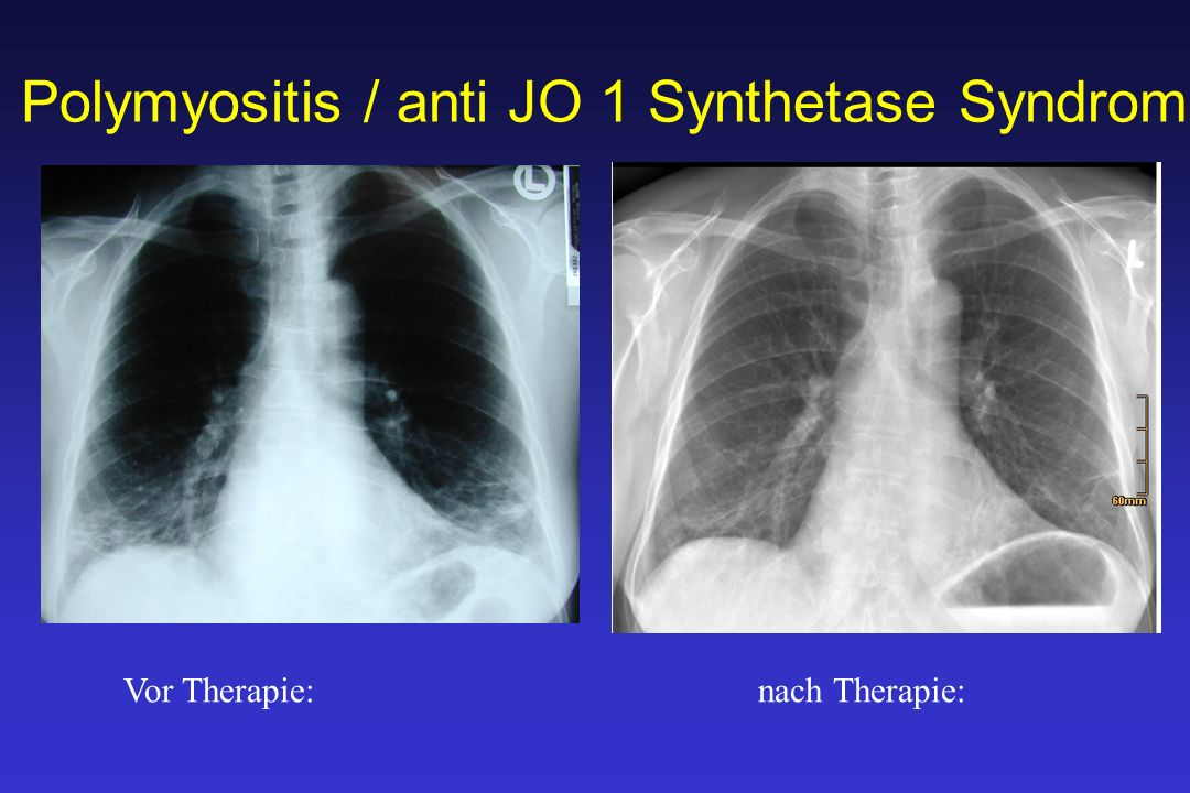 Polymyositis / anti JO 1 Synthetase Syndrom Vor Therapie:nach Therapie: