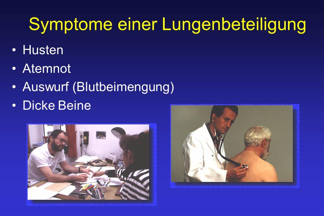 Symptome einer Lungenbeteiligung Husten Atemnot Auswurf (Blutbeimengung) Dicke Beine