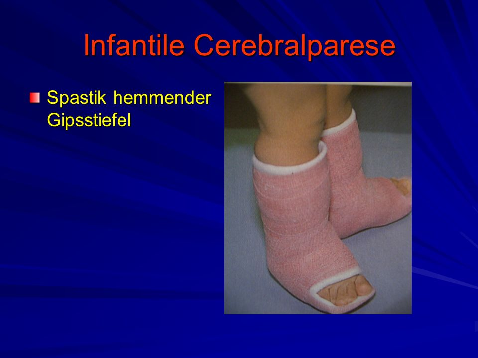 Infantile Cerebralparese Spastik hemmender Gipsstiefel