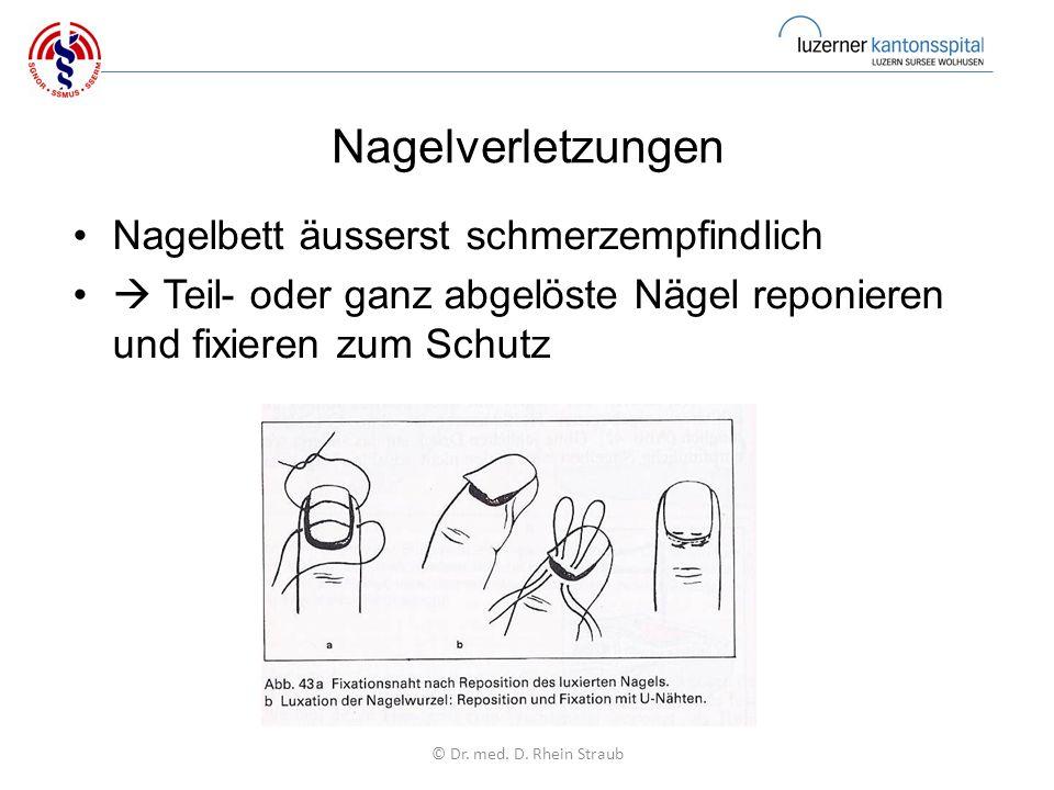 Nagelverletzungen Nagelbett äusserst schmerzempfindlich  Teil- oder ganz abgelöste Nägel reponieren und fixieren zum Schutz © Dr.
